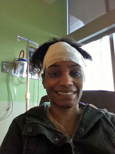 pic of Michelle with bandaged head